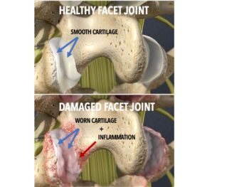 Damaged Facet Joint